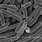 Benefits of Bacteria_EscherichiaColi NIAID by Rocky Mountain Laboratories